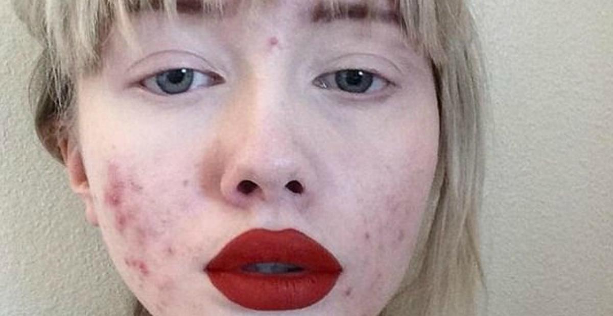 Hailey Wait acne